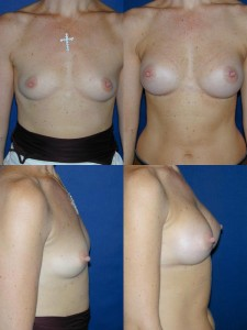 Breast Augmentation by Basim Matti Consultant Plastic Surgeon London