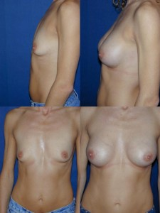 Breast Augmentation by Basim Matti Consultant Plastic Surgeon in London