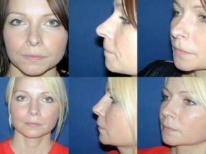 Pre _ Post Secondary Rhinoplasty (2)