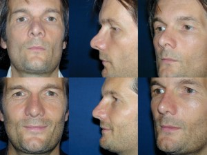 Pre _ Post Secondary Rhinoplasty Male (2)