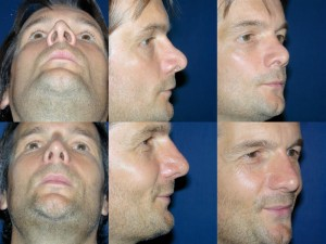 Pre _ Post Secondary Rhinoplasty Male