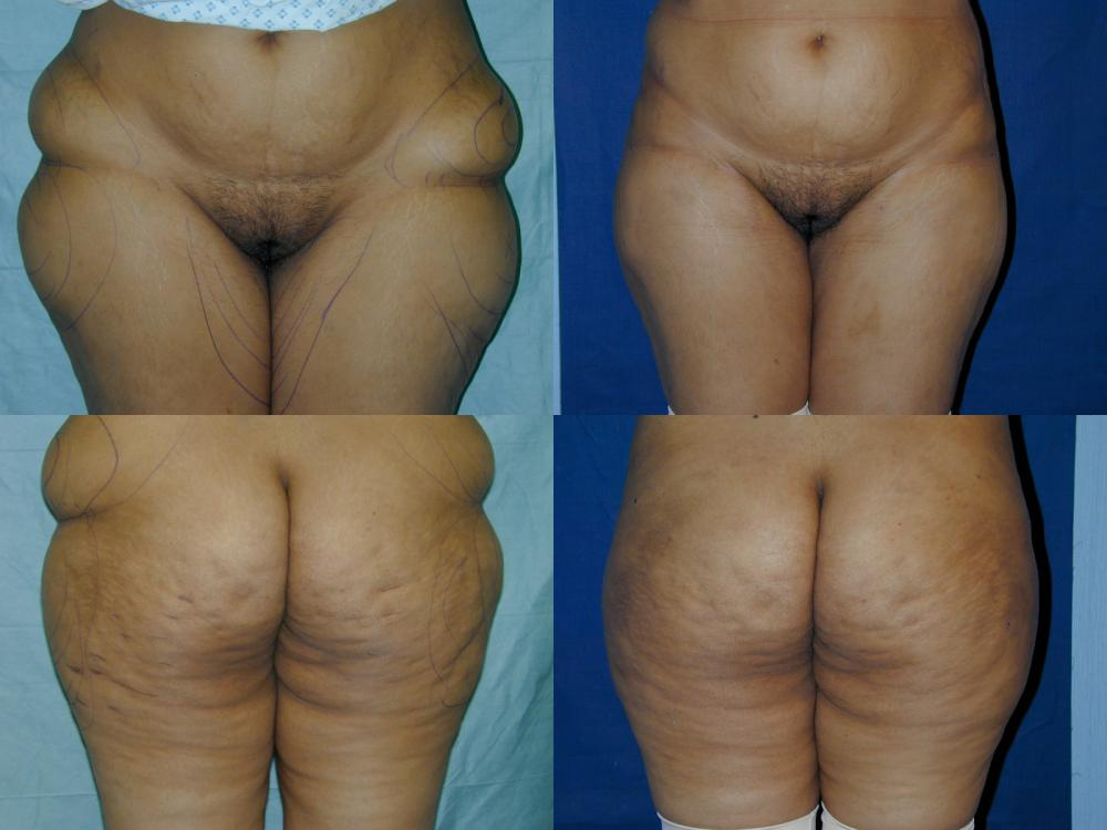 Liposuction by Basim Matti Consultant Plastic Surgeon London