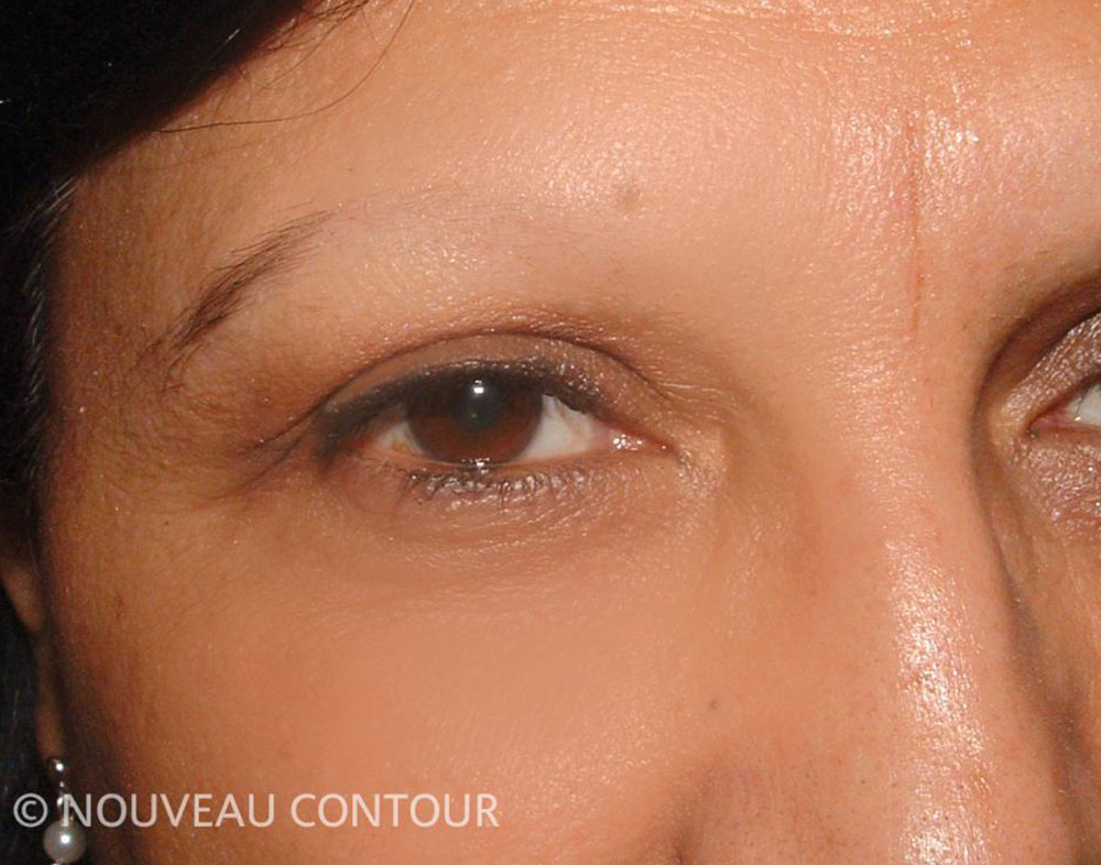 Permanent Eyebrows Before