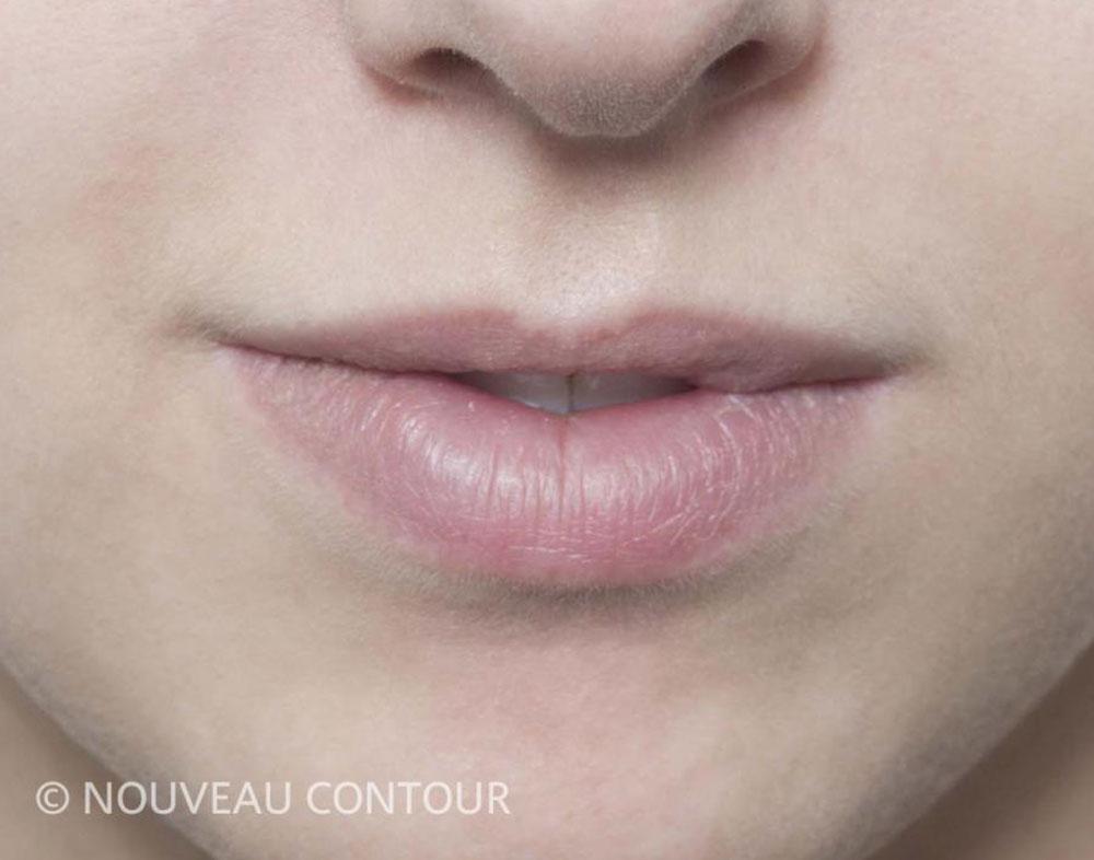 Permanent Lip Colour Before