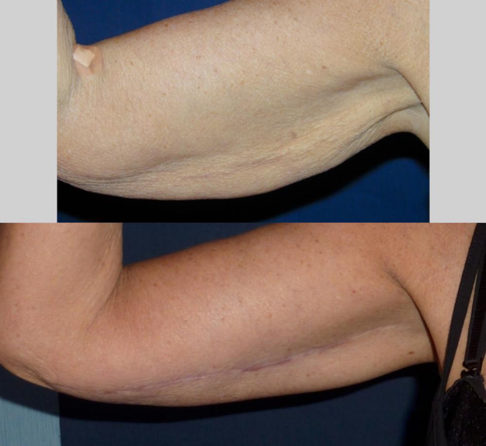 Pre _ Post Arm Lift
