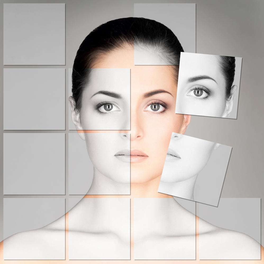 Volumetric Face Lift
