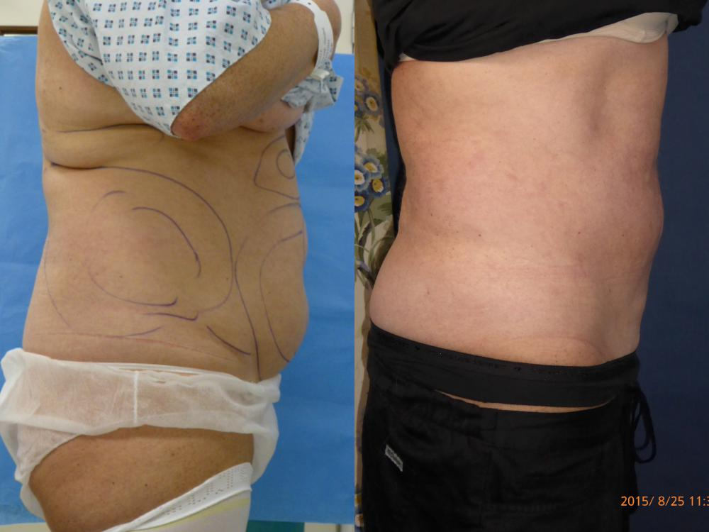 pre and post liposuction (2)