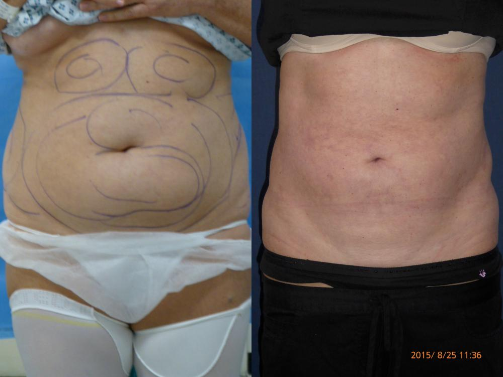pre and post liposuction